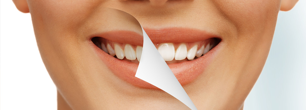 cosmetic dentistry in ottawa